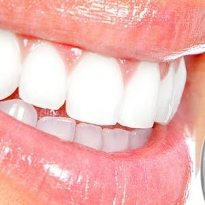 franshiza-white-smile.jpg